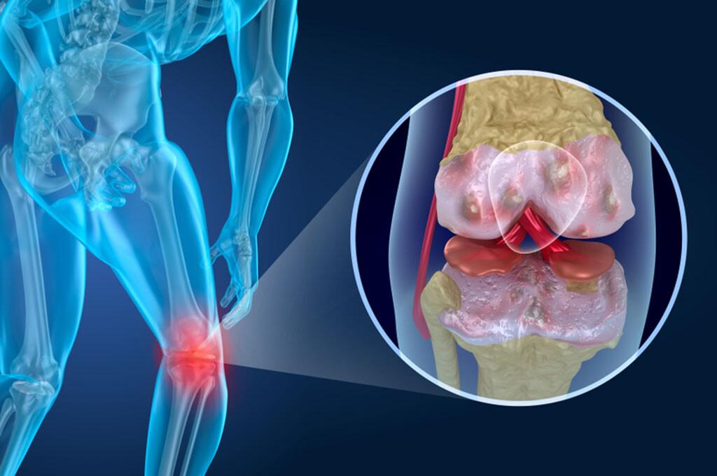 Eine chronische Übersäuerung des Körpers begünstigt auch die Entstehung von Rheuma und seinen schmerzhaften Folgen. © Alex Mit / shutterstock.com