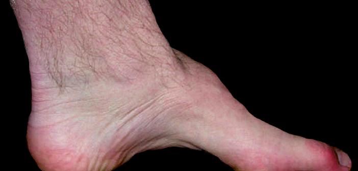 Hohlfuß mit Atrophie der kleinen Fußmuskeln und Hammerzehen bei einem Patienten mit Charcot-Marie-Tooth. © Benefros / CC BY-SA 3.0 / wikimedia