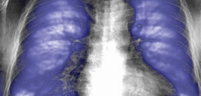 Bei Strahlenfibrose handelt es sich um narbige Umbildungen, bei denen das gesunde Gewebe durch weniger elastisches Bindegewebe ersetzt wird, dadurch verhärtet und in seiner Funktion eingeschränkt ist.