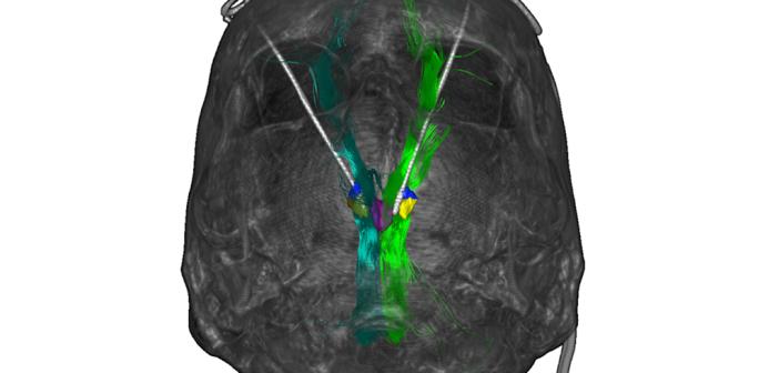 Die Freiburger Ärzte stimulierten mit Elektroden eine Region im Gehirn, die an der Wahrnehmung von Freude beteiligt ist. Dadurch wurde die Depression bei sieben der acht behandelten Patienten gelindert. © Universitätsklinikum Freiburg