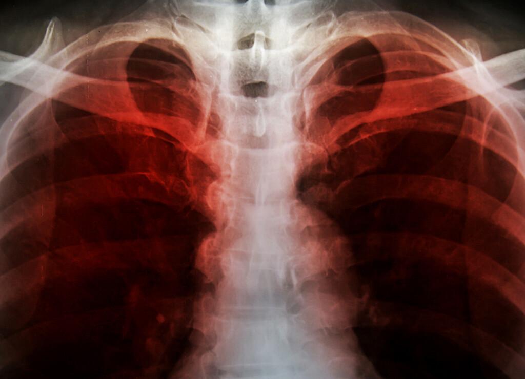 Lungenemphysem © toeytoey / shutterstock.com