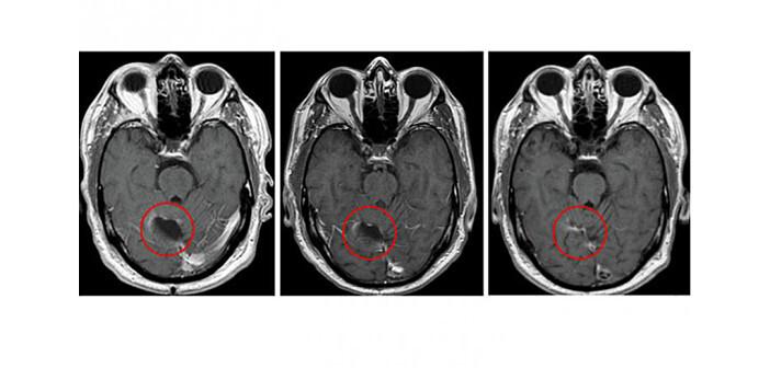 Gehirnscans der Glioblastom-Studie mit dem CVM-Impfstoff und Temozolomid. © CLINICAL CANCER RESEARCH / AMERICAN ASSOCIATION FOR CANCER RESEARCH