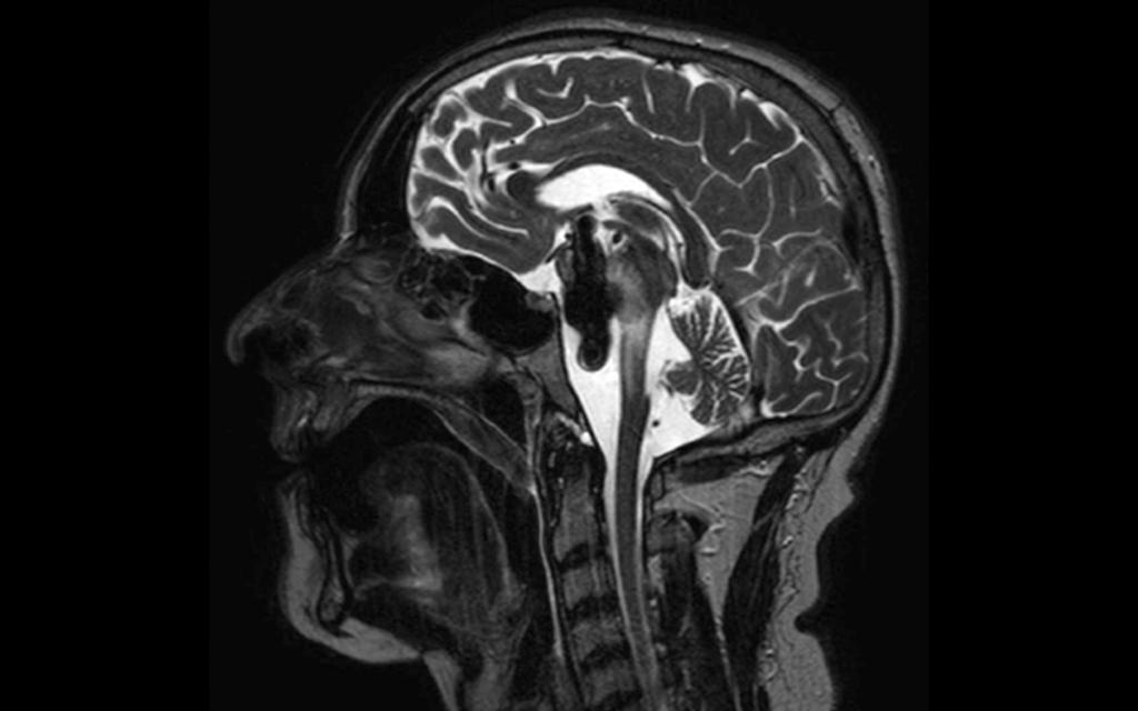 Abbildung 1: MRT, T2-gewichtet, sagittal: krankhafte Erweiterung der Arteria basilaris (Megadolichobasilaris) mit großen thrombosierten Anteilen, dadurch erhebliche Kompression des Hirnstamms.