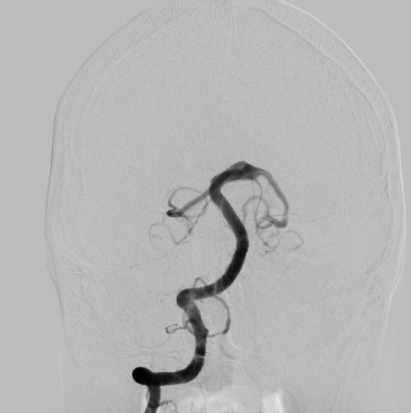 Abbildung 3: DSA ap der rechten Arteria vertebralis: nach Implantation von 3 Flowdivertern (Acandis Derivo) Normalisierung des Gefäßlumens.