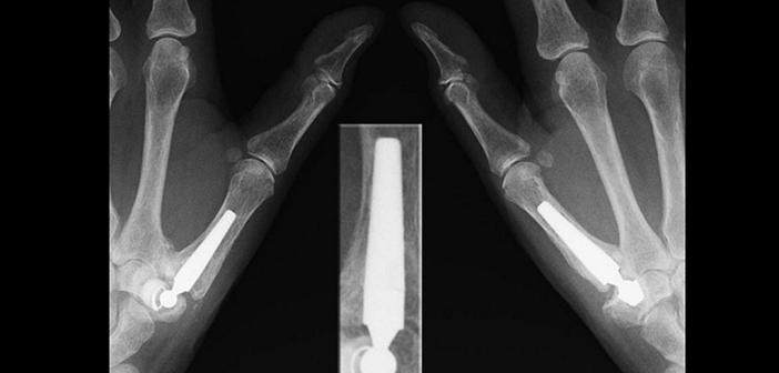 Rhizarthrose-Behandlung: Endoprothesen der Daumensattelgelenke mit Lockerung und Dislokation der Prothesenpfanne im Trapezbein links © J. Lengerke / CC BY-SA 3.0 de / wikimedia
