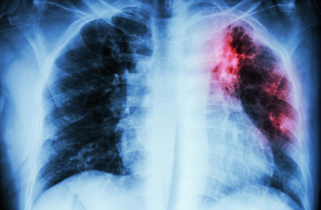 Multiresistente Tuberkulose-Erreger werden zu einem immer größeren Problem. © Puwadol Jaturawutthichai / shutterstock.com