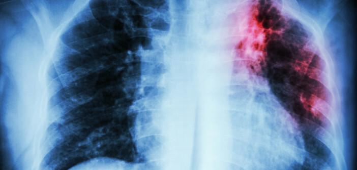 Multiresistente Tuberkuloseerreger werden zu einem immer größeren Problem. © Puwadol Jaturawutthichai / shutterstock.com