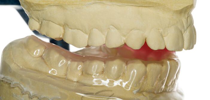 An den Zusammenhang Kopfschmerzen Zähne bzw. Kieferfehlstellung denken. © hightowernrw / shutterstock.com