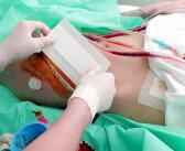 Belatacept nach Nierentransplantation mit großer Sorgfalt anwenden