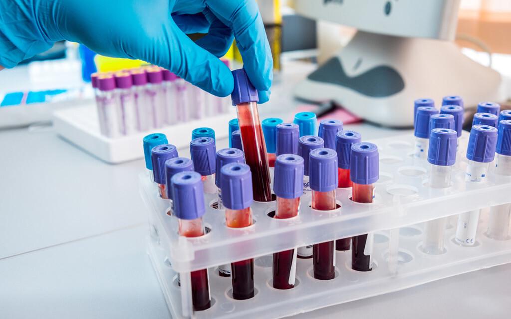 Bluttests zur Darmkrebs-Früherkennung werden immer aussagekräftiger. © Romaset / shutterstock.com