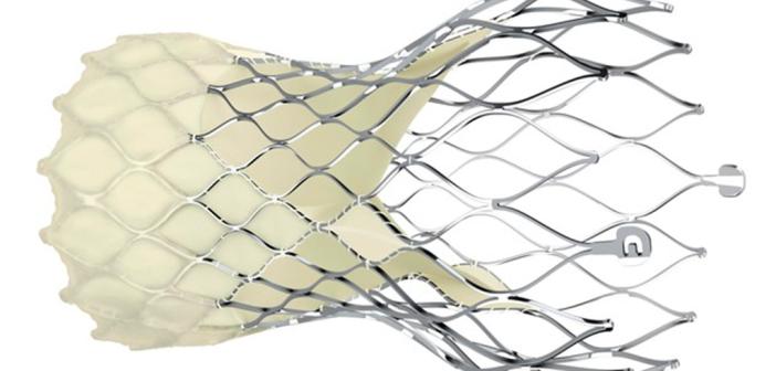 CoreValve Evolut Pro-Transkatheterklappe
