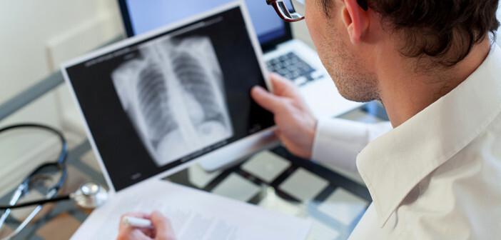 Lungenentzündung im Alter ist eine gefährliche Erkrankung mit jährlichen Todesopfern. © ditty about summer / shutterstock.com