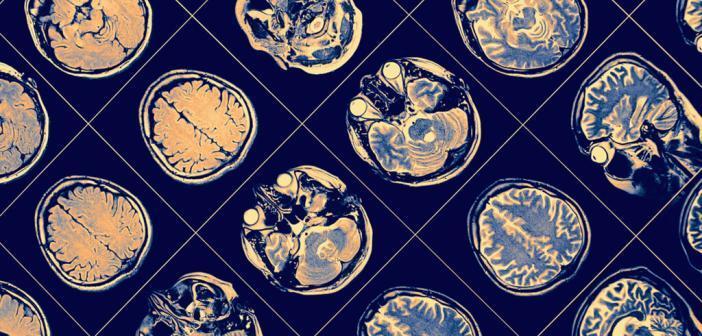 Demenz erkennen MRT-Gehirn © sfam_photo / shutterstock.com