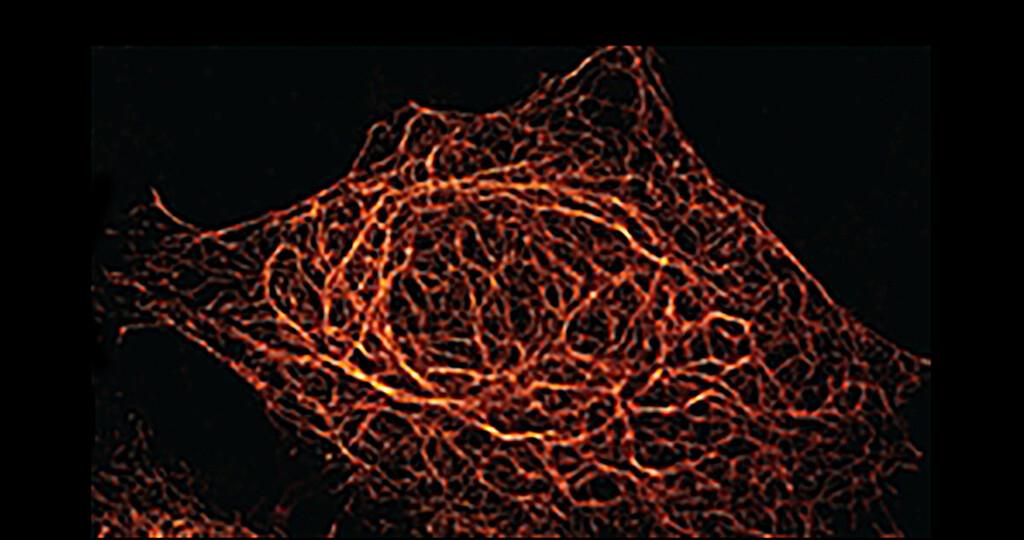 Darstellung zellulärer Strukturen, hier gezeigt Vimentin, nach Markierung mit dem BC2-tag/bivBC2-Nanobody-System in der hochauflösenden Mikroskopie (dSTORM) © NMI