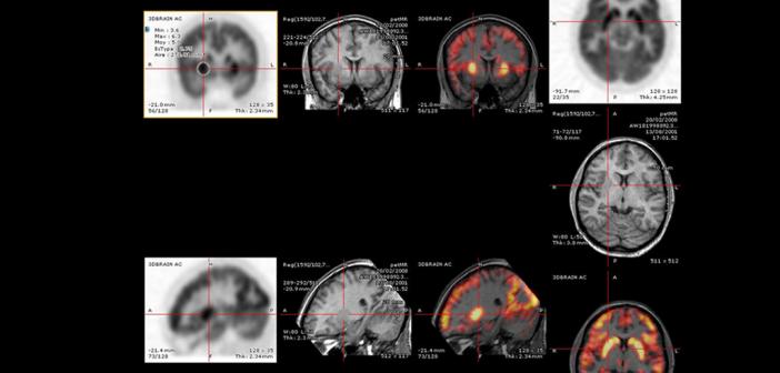 Neuroimaging © wikimedia