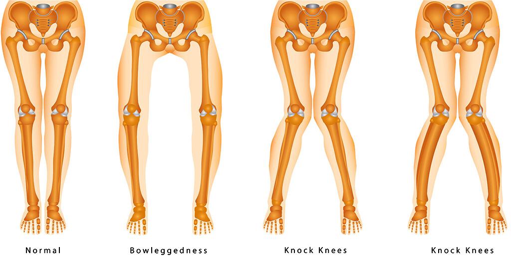 X-Beine und O-Beine © lotan / shutterstock.com