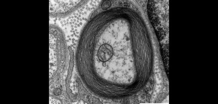 Elektronenmikroskopisches Bild der das Axon konzentrisch umgebenden Myelinscheide. © Wikimedia Commons