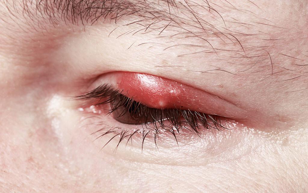 Problem Lidrandentzündung: Chronische Blepharitis und akute Blepharitis haben unterschiedliche Auslöser. © Gromovataya / shutterstock.com