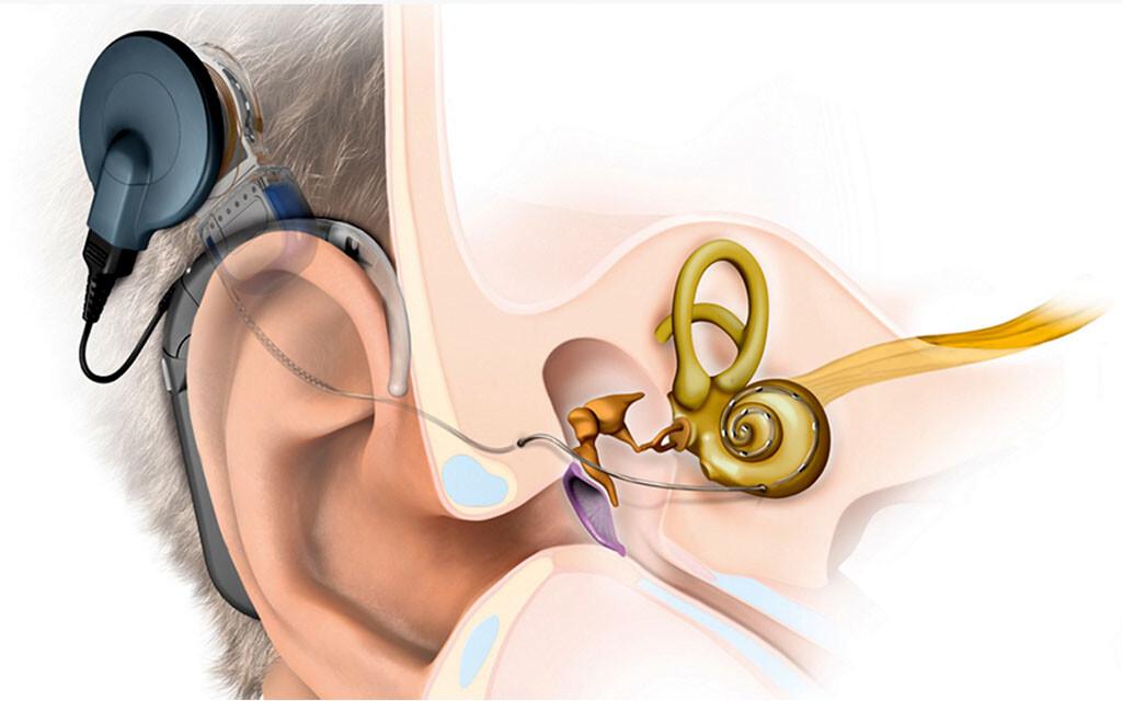Cochlea-Implantat gegen Schwerhörigkeit und Hörverlust im Alter zeigt verschiedene positive Effekte.