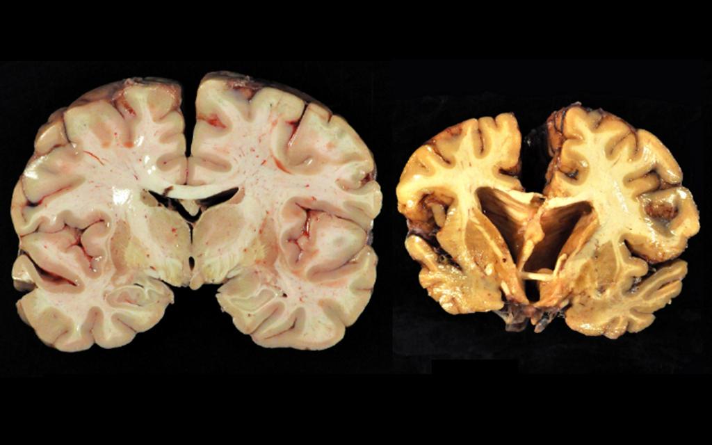 Enzephalopathie © Boston University Center for the Study of Traumatic Encephalopathy / CC4.0 / wikimedia