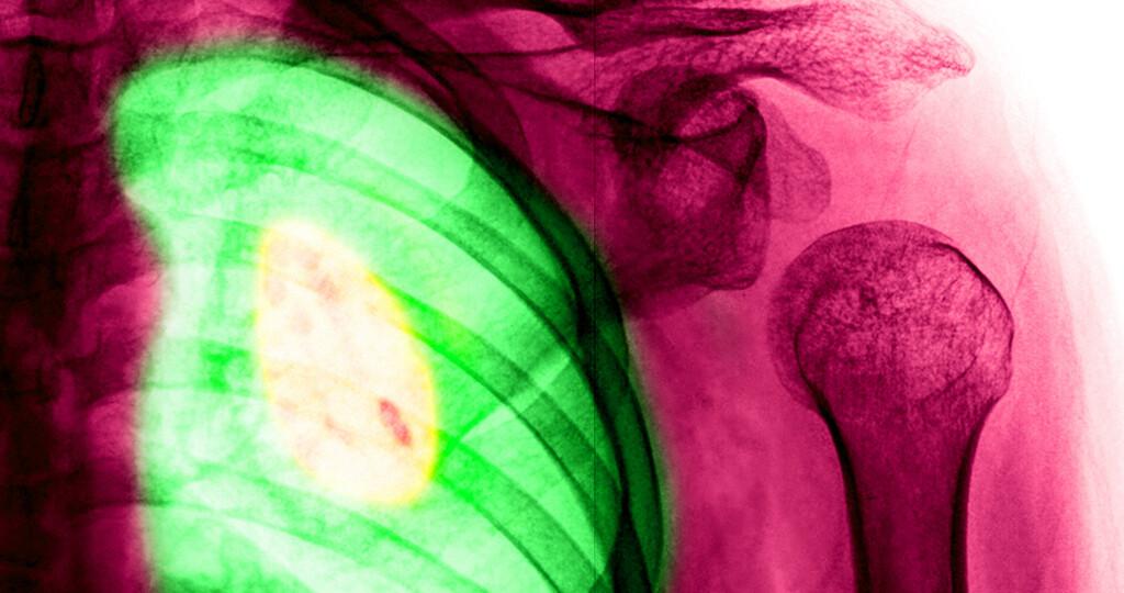 Die Überlebenschancen bei Lungenkrebs verbessern sich. © wonderisland / shutterstock.com
