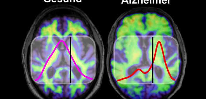 Im Gehirn von Menschen mit Alzheimer-Demenz kommt es zu krankhaften Ablagerungen des Proteins Amyloid-Beta, die mit bildgebenden Verfahren wie Amyloid-PET sichtbar gemacht werden können (rechts). Gesunde und krankhaft gefaltete Amyloid-Beta-Proteine absorbieren Infrarotlicht unterschiedlich. Bei Alzheimer-Patienten kommt es im Vergleich zu Gesunden zu einer Frequenzverschiebung unterhalb des Schwellenwerts, die der Alzheimer-Bluttest nachweist. © K. Gerwert, A. Nabers / RUB