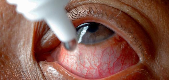 Wirksamkeit und Verträglichkeit der verschiedenen Tränenersatzmittel werden bei Sicca Syndrom sehr unterschiedlich empfunden. Daher sollten eventuell mehrere Präparate ausprobiert werden © Anukool Manoton / shutterstock.com