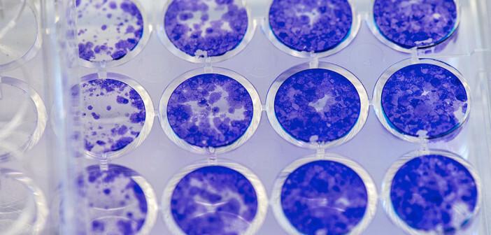 """Sogenannte """"Colony Formation Assays"""" sind schnelle und wirksame Methoden zum Studium der Wirksamkeit neuartiger Medikamente hinsichtlich ihrer Anti-Krebs-Wirkung. © Andreas Heddergott / TU Muenchen"""