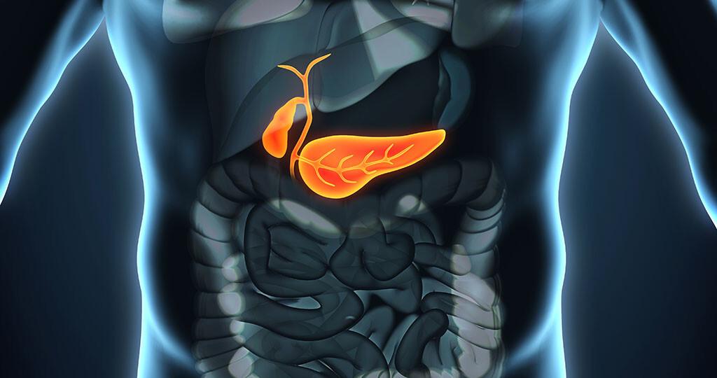Ausgewogene Ernährung ist für exokrine Pankreasinsuffizienz Patienten sehr wichtig. Da mangels körpereigener Enzyme insbesondere die Fettverdauung gestört ist, werden Bauchspeicheldrüsenenzyme in Form von Kapseln oder Granulat verabreicht. © Nerthuz / shutterstock.com