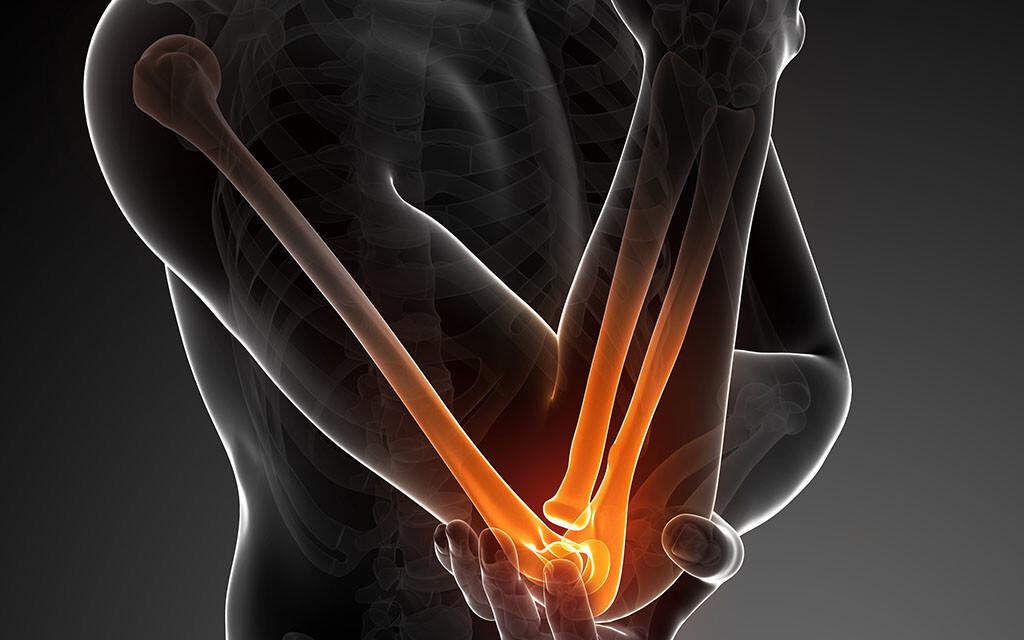 Der Tennisellbogen – auch Tennisarm genannt – ist eine Beinhaut- und Sehnenentzündung am Gelenk. © Sebastian Kaulitzki / shutterstock.com