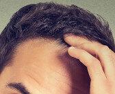 Anlagebedingter Haarausfall – Androgenetische Alopezie