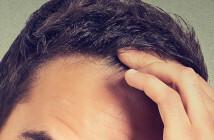 Androgenetischer Haarausfall – anlagebedingter Haarausfall.