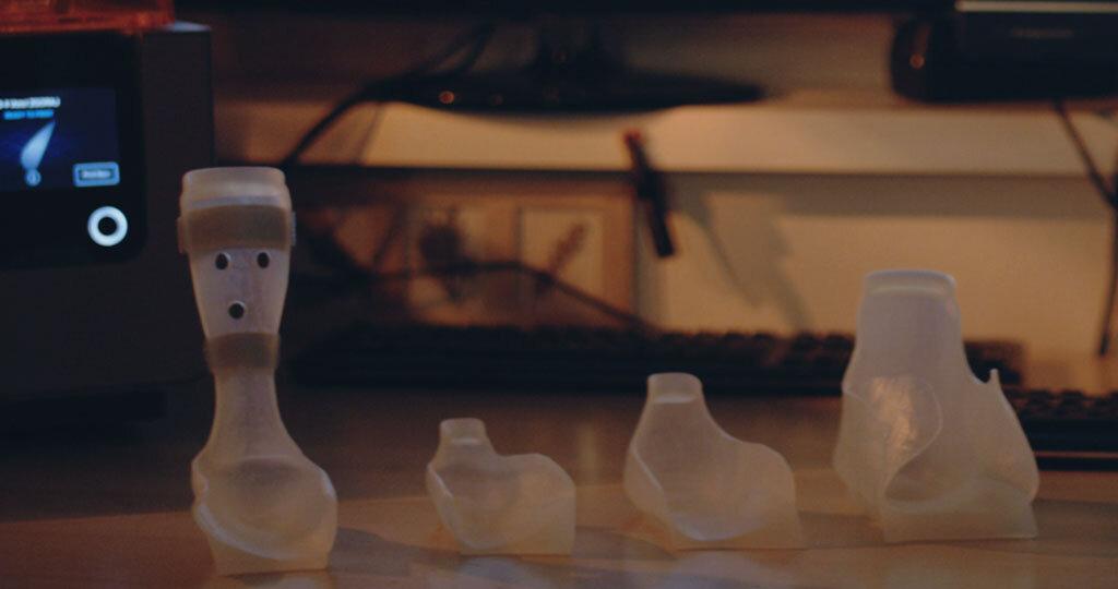 Maßgeschneiderte Orthesen für mehrere Patienten. 3D-Druck bietet die Gestaltungsfreiheit, Orthesen mit unterschiedlichen Stärken in verschiedenen Bereichen zu erstellen, um jeden einzelnen Patienten besser zu unterstützen.