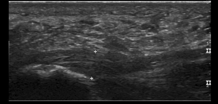 Plantarfasziitis im Ultraschall. Die Aponeurosis plantaris ist das horizontale Band zwischen den Kalippern. Darunter befindet sich links unten im Bild das Fersenbein. © Mme Mim / CC BY-SA 4.0 / wikimedia