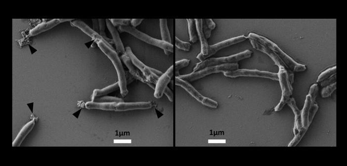 Elektronenmikroskopische Aufnahme von Tuberkulosebakterien. Links mit BTZ-Behandlung sieht man das Austreten des Zellinhalts. © Dr. Andreas Wieser