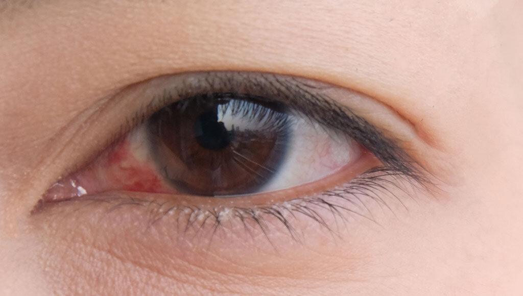 Trockene Augen (Sicca Syndrom) verursachen ein Gefühle wie Sankörner in den Augen zu haben. © Lennon Photo / shutterstock.com