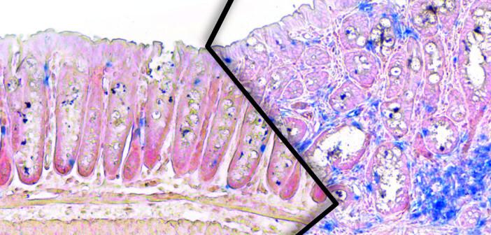 Dickdarmgewebe aus schlanken (links) und übergewichtigen (rechts) Mäusen der Studie. Bei den übergewichtigen Tieren ist ein verstärktes Tumorwachstum mit erhöhter Immunzellanzahl (blau) zu sehen. © Max-Planck-Institut für Stoffwechselforschung