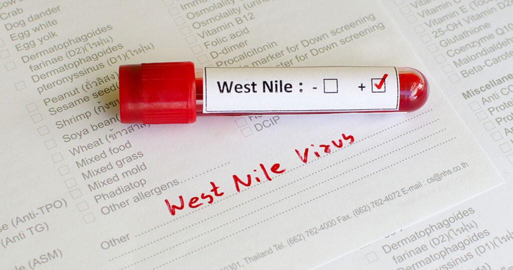 Aus epidemiologischer Sicht ergibt sich durch das Blutspende-Screening die Möglichkeit, die West Nil Virus Aktivität in den betroffenen Regionen zeitnah zu überwachen. © Jarun Ontakrai / shutterstock