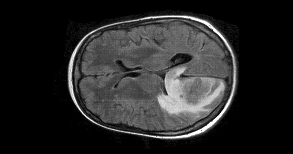 Schädel MRT (t2 flair) einer Hirnmetastase mit begleitendem Ödem. © Drahreg01 / CC BY-SA 4.0 / wikimedia