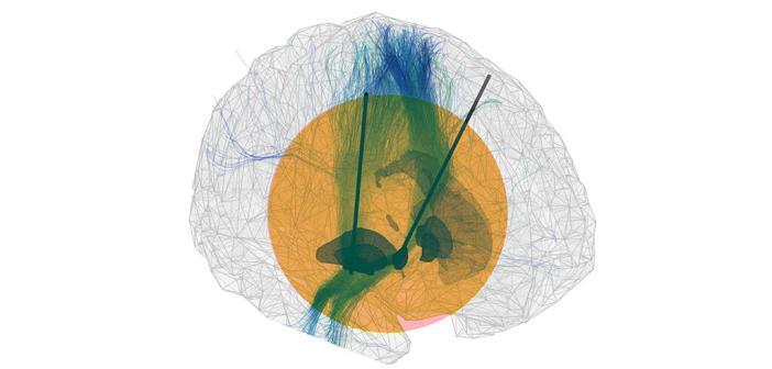 Computersimulation zur Tiefen Hirnstimulation. © Neumann / Charité