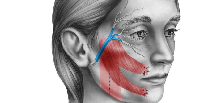 Idiopathische Fazialisparese, Bell's Palsy, Gesichtslähmung © Medical Art Inc / shutterstock.com