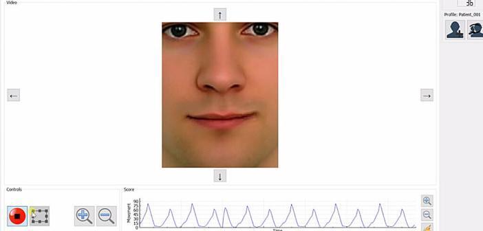 Gesichtsmuskulatur-Training mit der Biofeedbacklupe bei Gesichtslähmung. © UKE / Anke Schlüter