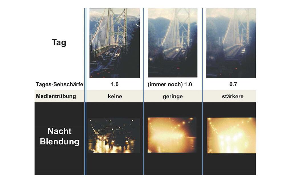 """Abbildung 1: Visualisierung der Auswirkungen von unterschiedlichen Stadien der Augenlinsentrübungen (""""grauer Star"""") auf das Sehvermögen unter verschiedenen Beleuchtungsbedingungen: Bei Tag resultiert – selbst bei stärkeren Trübungsgraden – nur eine vergleichsweise geringe Beeinträchtigung, bei Nacht hingegen führen schon geringe Linsentrübungen zu einer deutlichen Reduktion des Sehvermögens. © Prof. Dr. Dr. B. Lachenmayr"""