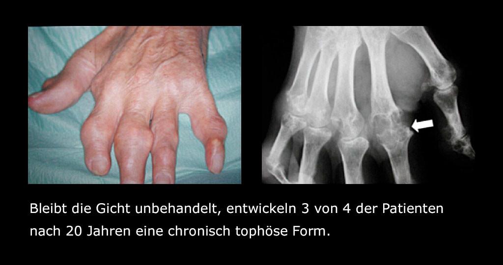 Gichtarthritis / Gicht / Hyperurikämie