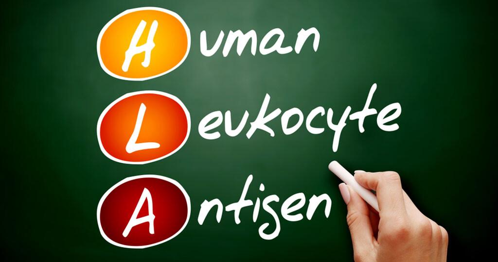 HLA-Gene / genetische Veranlagung. © Dizain / shutterstock.com