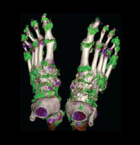 Eine Computertomographie macht Harnsäure-Ablagerungen sichtbar (grün)