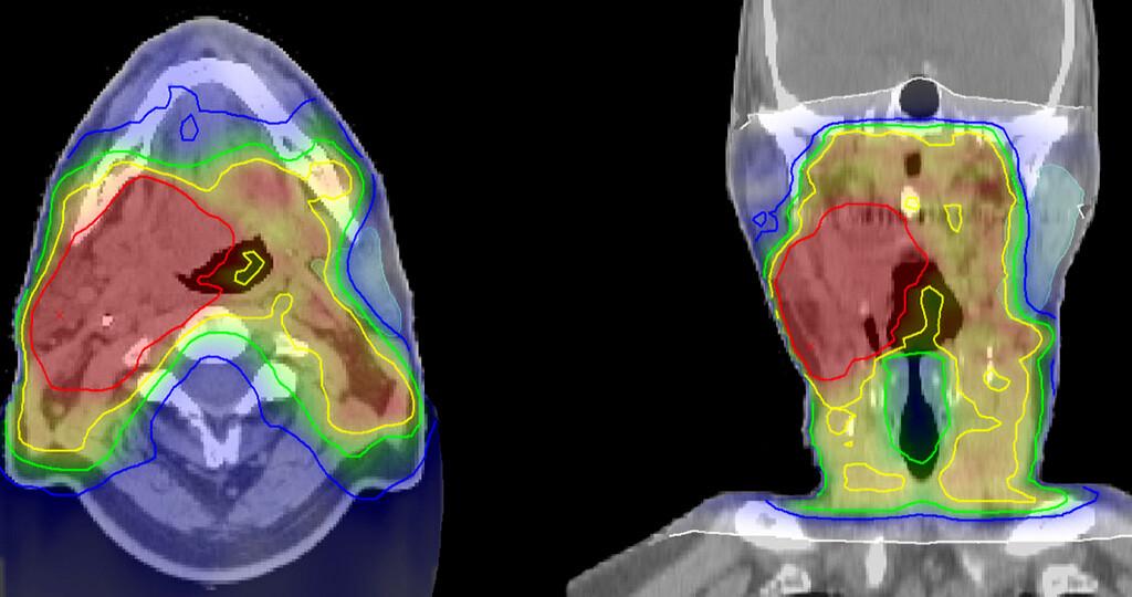 Bestrahlungsplan eines Kopf-Hals-Tumors © Klinikum der Ludwig-Maximilians-Universität München