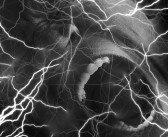 Tramadol-Sucht nach erstmaligem Gebrauch wegen akuter Schmerzen