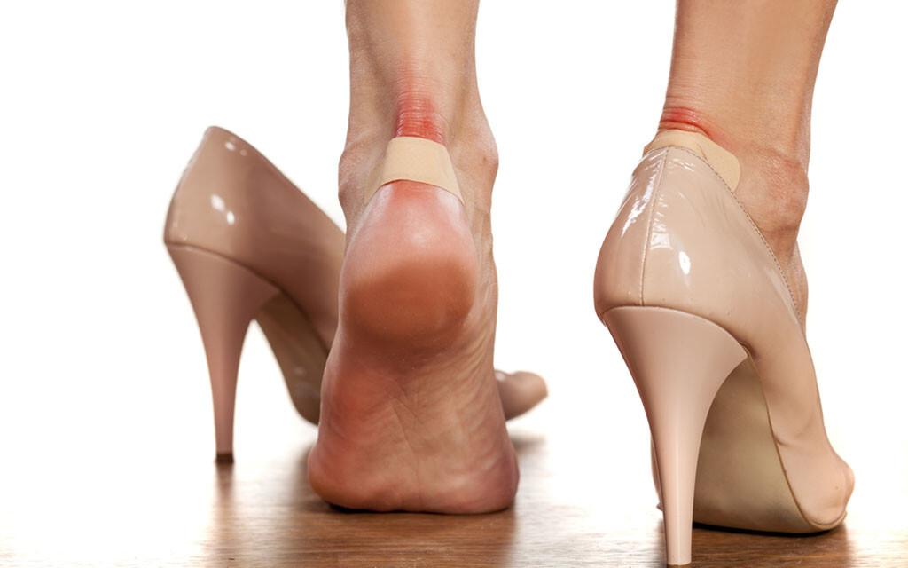 Blasen an den Füßen sind leider sehr häufig. © Vladimir Gjorgiev / shutterstock.com