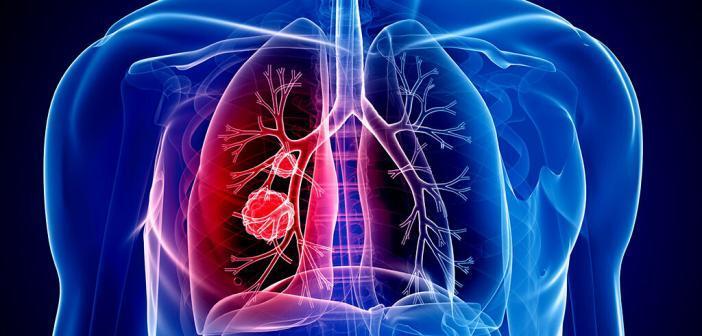 Dass eine Immuntherapie Lungenkrebs effektiv bekämpfen kann, ist in fast allen Stadien möglich. © Sebastian Kaulitzky / shutterstock.com